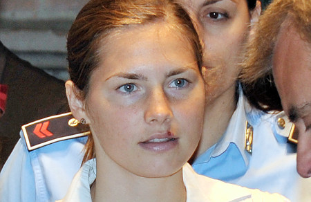 AMANDA KNOX COLD SORE