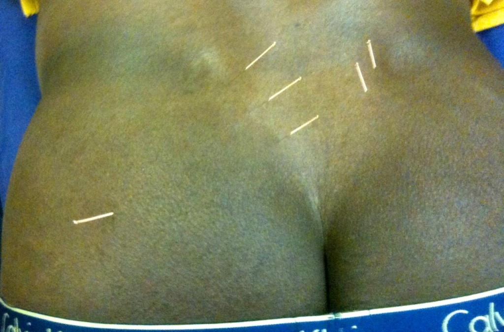 DRY NEEDLING BUM