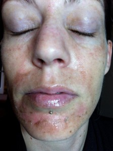 Chemical facial peel recuperation period out