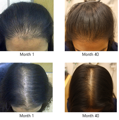 LADY HAIR LOSS